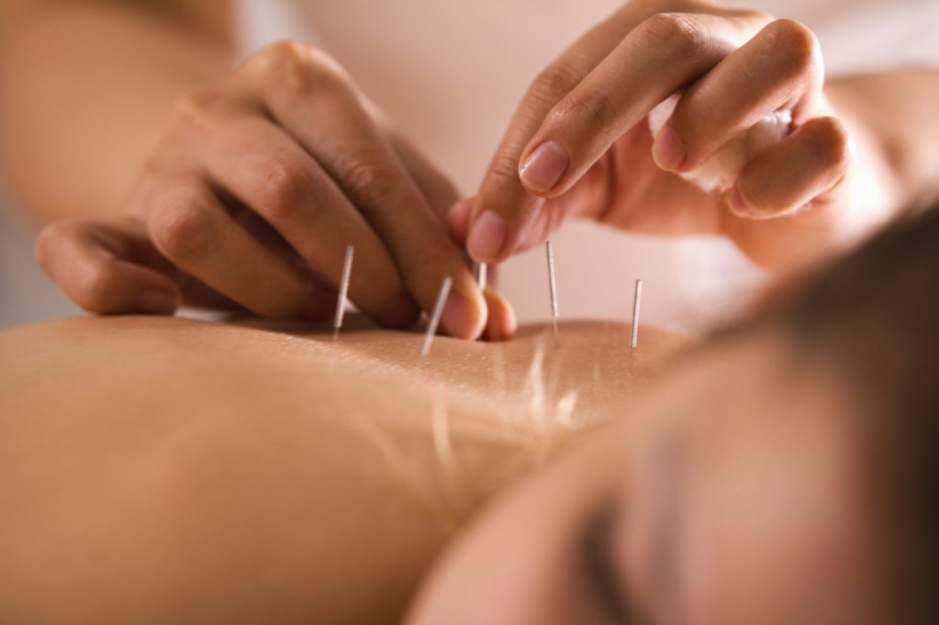 western acupuncture