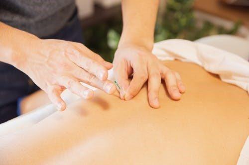 Person getting acupuncture treatment in Preston